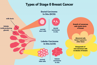 Types of stages breast cancer